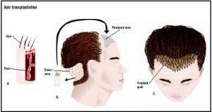 Trasplante pelo